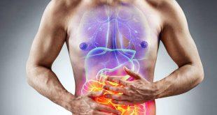 hinchazón o inflamación intestinal